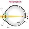Астігматіческіе контактні лінзи: особливості, різновиди та технологія використання