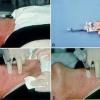 Біопсія щитовидної залози: що це таке, як її роблять? Біопсія щитовидної залози: підготовка, розшифровка результатів аналізів, наслідки