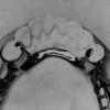 Бюгельний протез шінірующій: опис, особливості, відгуки