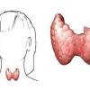 Що таке гіпертиреоз? Симптоми у жінок, причини, прояви та лікування