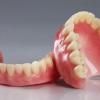 Як здійснюється ремонт зубного протеза
