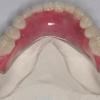 Нейлоновий протез при повній відсутності зубів і частковому. Відгуки про нейлонових протезах