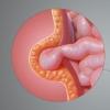 Пупкова грижа у жінок: симптоми і лікування. Як вилікувати пупкову грижу у жінок без операції?