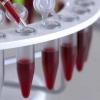 Розшифровка аналізу крові HCT, норма