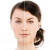 """Серія спеціалізованих косметичних засобів """"Базірон Контрол"""": відгуки дерматологів"""