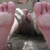 Стопа траншейна - неприємна хвороба мокрих і замерзлих ніг