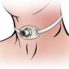 Трубка в горлі після операції (фото). Навіщо вставляють трубку в горло?
